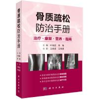 【按需印刷】-骨质疏松防治手册