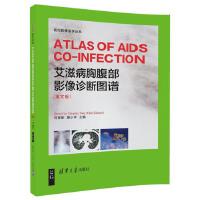 艾滋病胸腹部影像诊断图谱 ( ATLAS OF AIDS CO-INFECTION) (英文版)