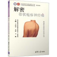 解密:带状疱疹神经痛 清华大学出版社