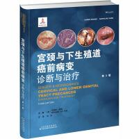 宫颈与下生殖道癌前病变诊断与治疗(第3版) 天津科技翻译出版公司