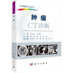 肿瘤CT诊断